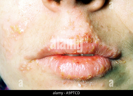 Herpes simplex cold sores on lips and face - Stock Photo
