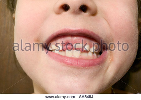 Young girl showing off gap in teeth - Stock Photo