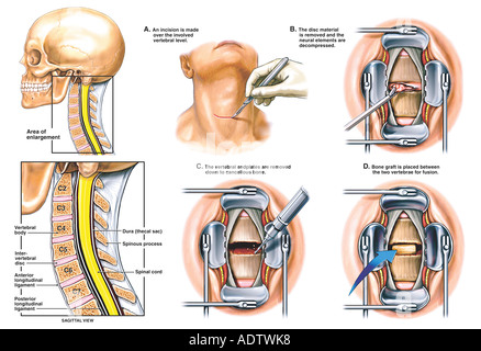 Classic Smith-Robinson Anterior Cervical Discectomy and Fusion - Stock Photo
