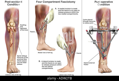 how to fix a fractured tibia and fixya