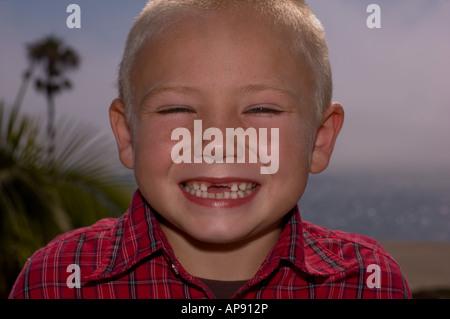 Missing Teeth - Stock Photo