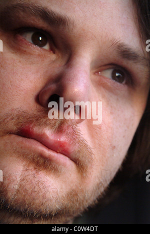 Head shot of a man with cold sores on his lips - Stock Photo