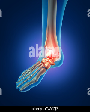 Foot pain with a skeleton of the walking body part with bones in red where trhere is inflamation of the ankle that - Stock Photo