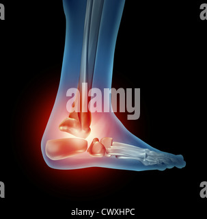 Ankle foot pain with a skeleton of the walking body part with bones in red where there is inflammation of the side - Stock Photo