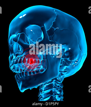 Toothache, conceptual artwork - Stock Photo
