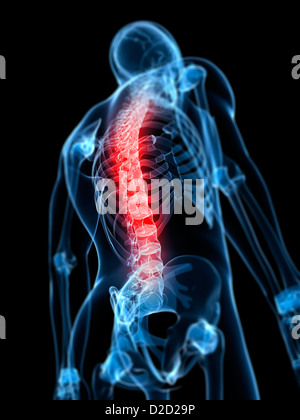 Back pain conceptual computer artwork - Stock Photo