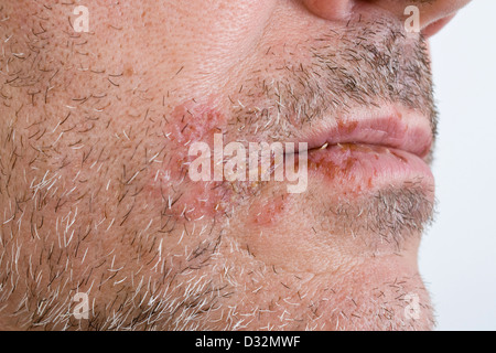 Cold sores on lips - Stock Photo