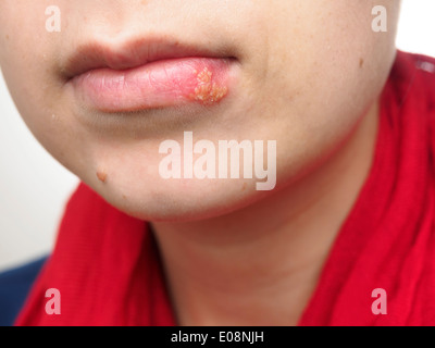 Young woman with herpes simplex infection on lower lip - Stock Photo