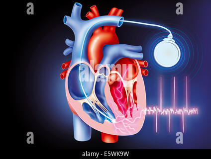 How to Live With an Implantable Cardioverter Defibrillator