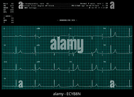 Abnormal electrocardiogram showing a sinus bradycardia. - Stock Photo