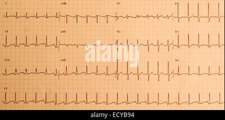 Abnormal electrocardiogram showing a sinus tachycardia. - Stock Photo