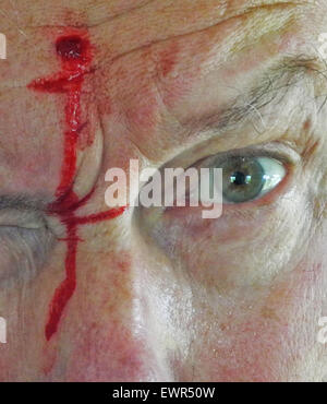 how to stop a head wound from bleeding