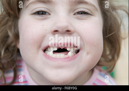 Young girl with front teeth missing smiling at the camera - Stock Photo
