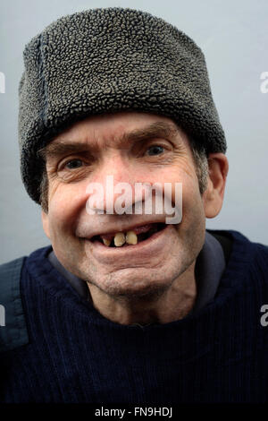 Man with learning difficulties - Stock Photo