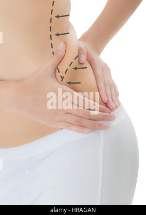 Close up woman grabbing skin on her flanks with the drawing black arrows, Lose weight and liposuction cellulite - Stock Photo
