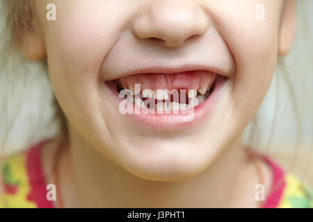 Childish smiling mouth with missing milk teeth - Stock Photo
