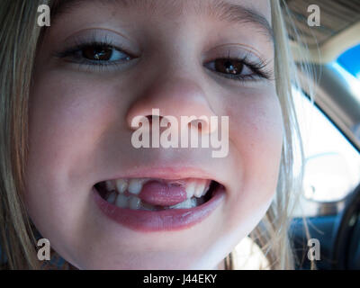 A girl sticks her tongue through the gap left from her missing teeth. - Stock Photo