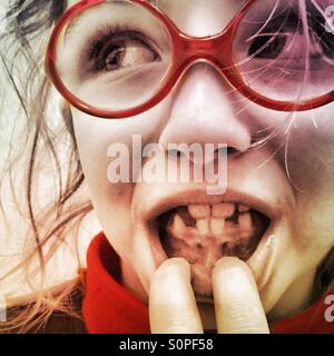 Little girl showing missing teeth - Stock Photo