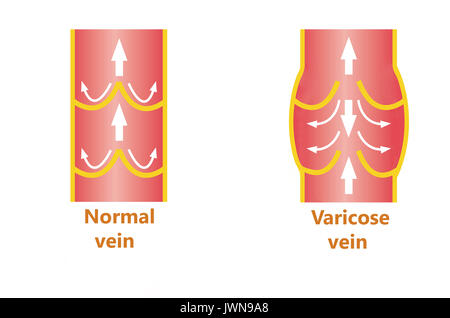 Normale venöse Anatomie Stockfoto, Bild: 134987735 - Alamy